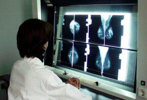 """Tumore al seno, nasce """"Spoke"""" per il monitoraggio delle donne ad alto rischio"""