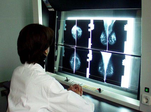"""Tumore al seno, solo il 70% delle donne si presenta allo screening. Schianchi: """"Non rischiate perchè la prevenzione può salvare la vita"""""""