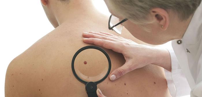 visite dermatologiche