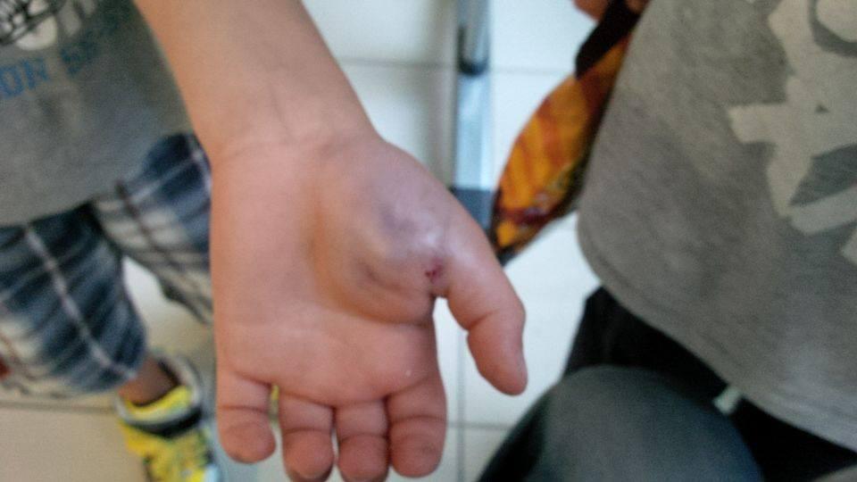 Mano nell'affettatrice: operaio rischia amputazione di un dito